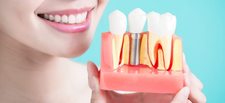 Are Dental Implants Right for You?