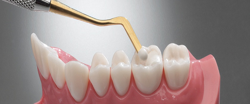 Wellington Point Dental Guide – How Long Can You Expect A Dental Filling To Last?