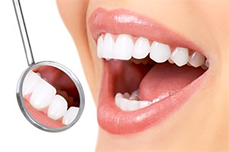 How much veneers cost in Wellington point?