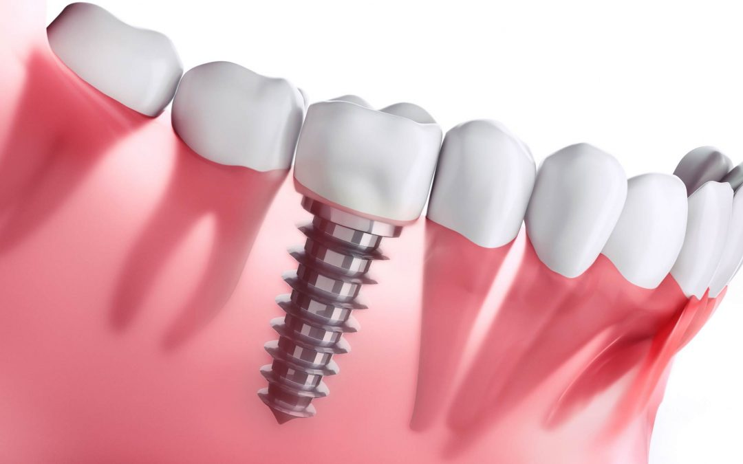 How Much do Dental Implants Cost in Capalaba, Wellington Point?