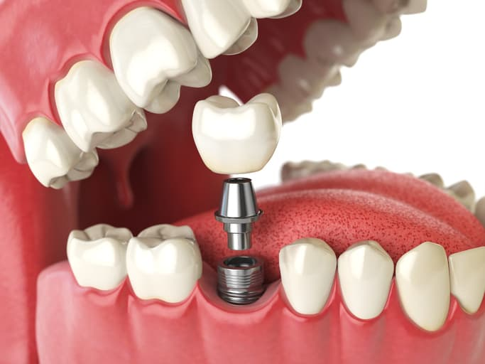 Where can I get Affordable Titanium/Zirconium Dental Implants in Wellington Point and Redland Bay?