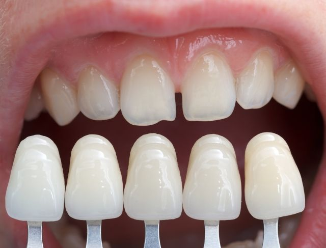 Where can I get quality dental veneers in Wellington Point and Capalaba?