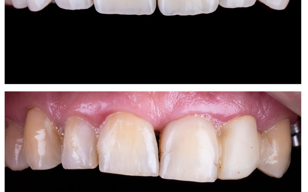 5 Great Tips to Look After Your Porcelain Veneers to Keep it Clean!