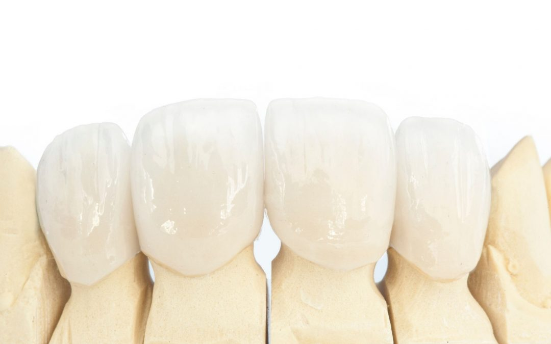 5 Tips from Dental Experts for Taking Care of Your Dental Crown