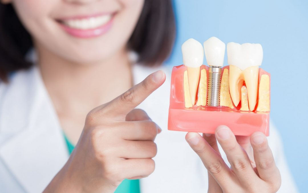 cost-and-procedure-for-a-single-tooth-dental-implant-wellington-point-dentist