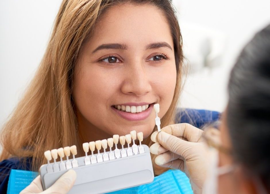 Why Are Temporary Veneers Important?
