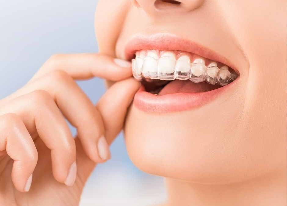 What Foods Should I Avoid During Invisalign Treatment in Wellington Point